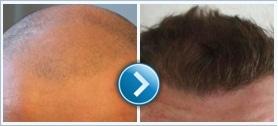 Greffe de cheveux en Hongrie